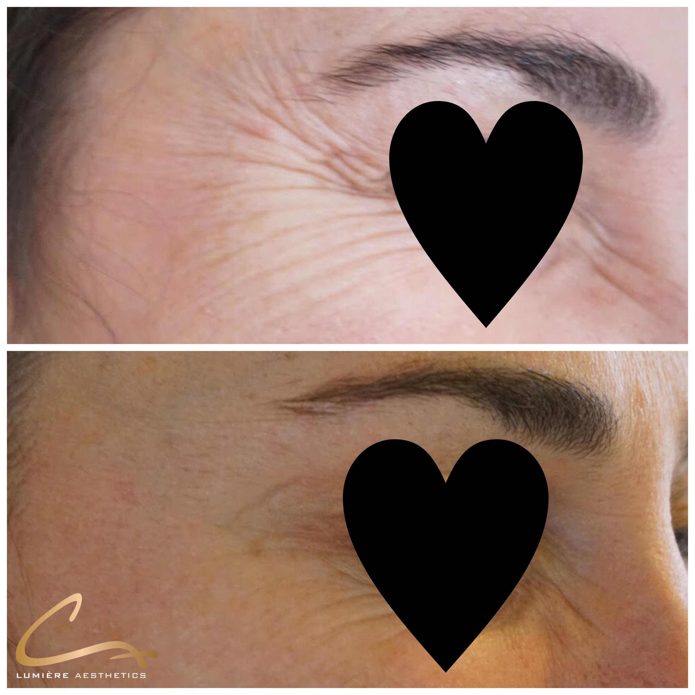Botox kraaienpootjes en bunny lines na 1 behandeling.