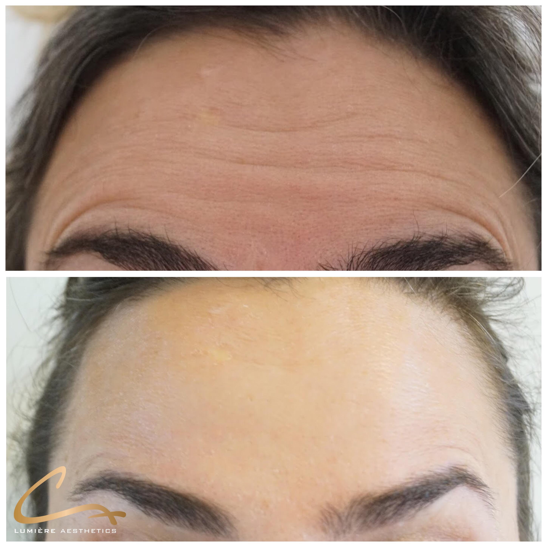 Botox voorhoofd