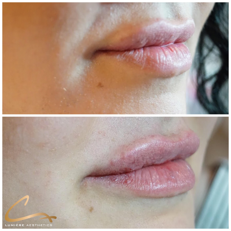 Lippen Juvéderm