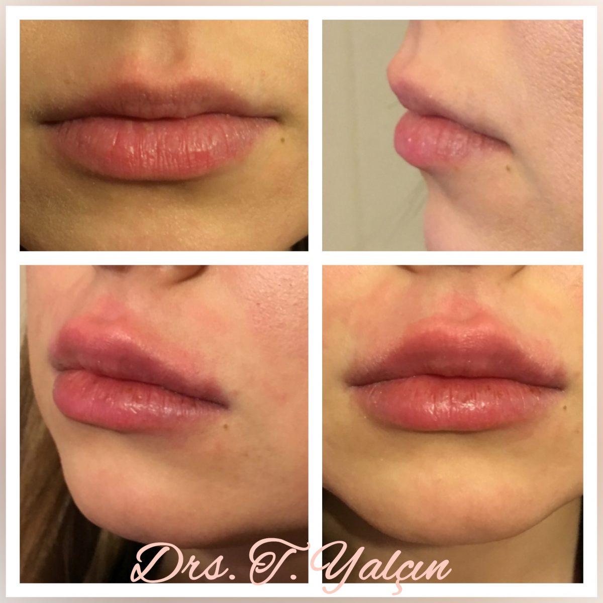 Hartvorm lippen Juvéderm. Zwelling en roodheid trekken weg.
