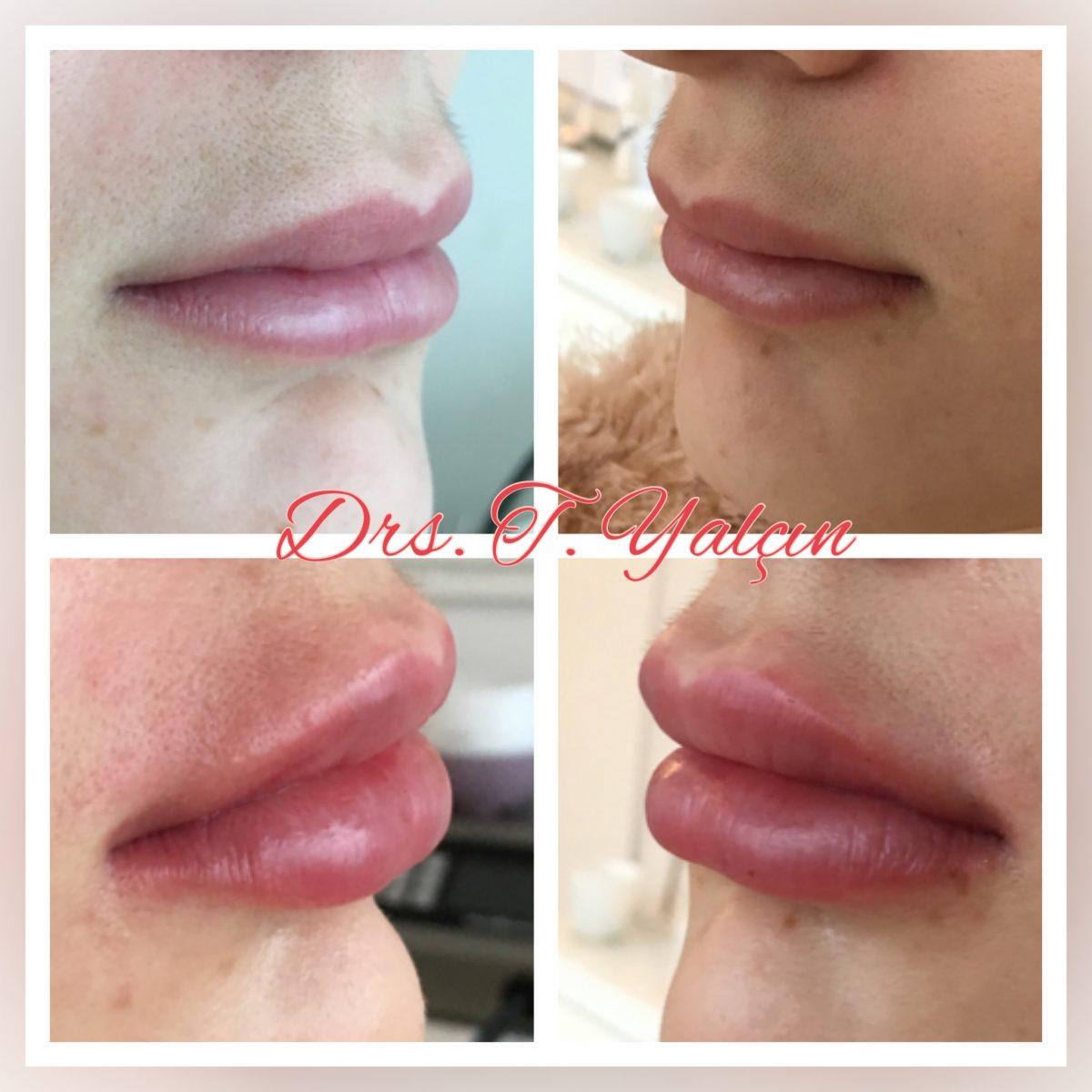 lippen opvullen aanbieding