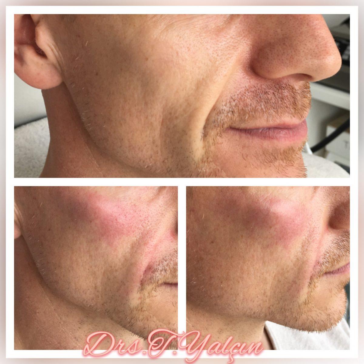 Intraline for Men 2 mL Jukbeenderen en zachter maken van de nasolabiale plooien. Roodheid en zwelling trekken weg.