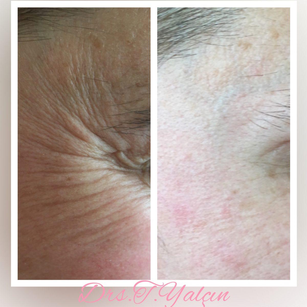 Botox kraaienpootjes