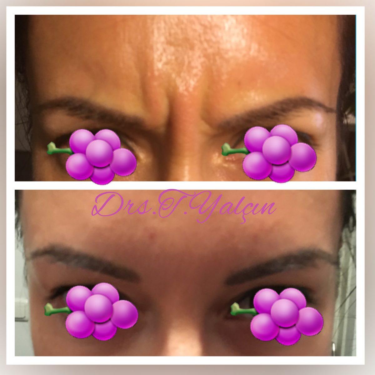 Botox Frons