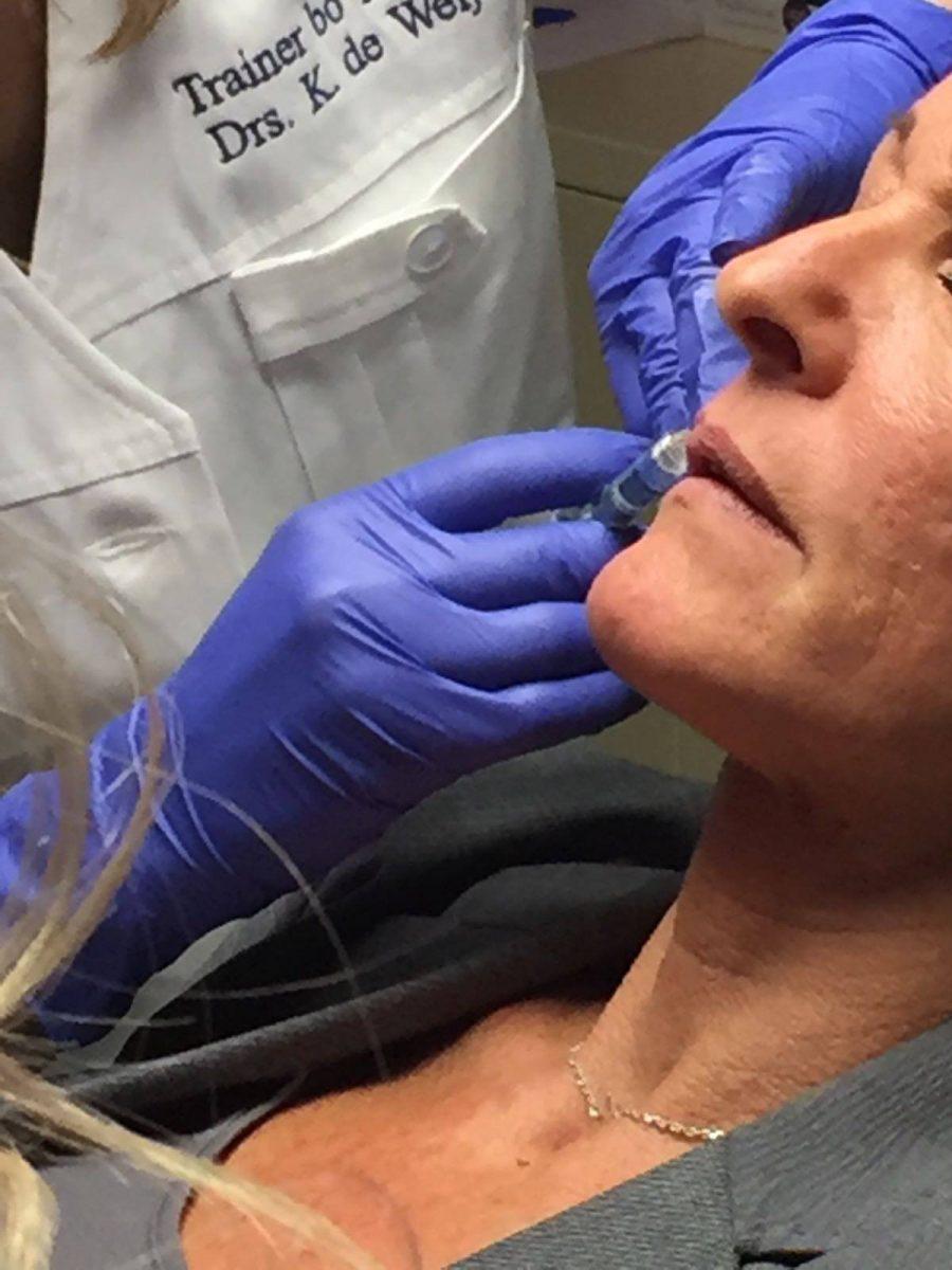 Botox Fillers het gooi