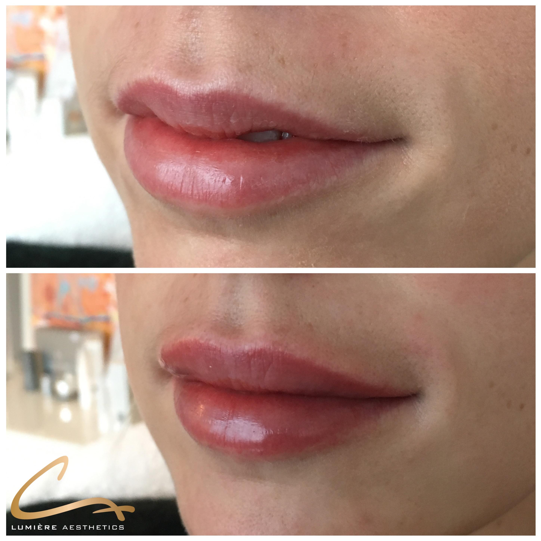 Filler lippen